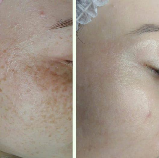 Résultats avant-après Facial Peeling MeLine