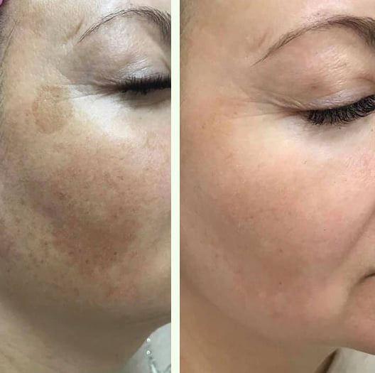 Résultats avant-après Facial Peeling MeLine 2